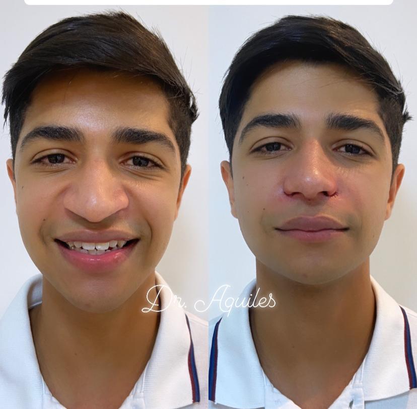 IMG 20200620 WA0118 - Conheça Dr. Aquiles, Cirurgião Dentista referência em Harmonização Facial e Alectomia
